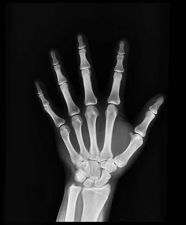 x-ray-1704855_960_720